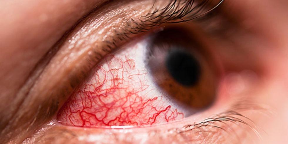 علائم بیماری و عفونت چشم
