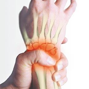 شیوع آرتریت روماتوئید در زنان سه برابر مردان