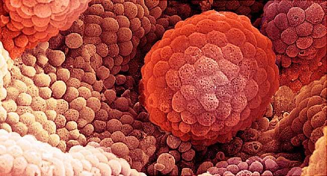 مردان از سن 50سالگی برای سرطان پروستات آزمایش دهند