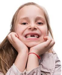 شیر یا بزاق دهان بهترین محیط برای نگهداری دندان افتاده در اثر ضربه