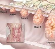 علائم سرطان گوارش