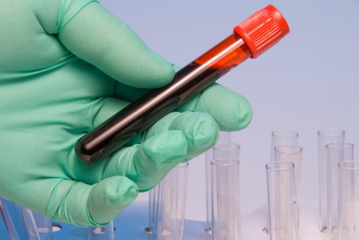 ژن درمانی، چشم اندازی نو در درمان هموفیلی