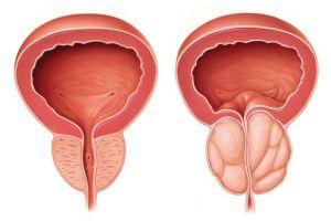تاثیر بزرگی خوش خیم پروستات برعملکرد جنسی مردان چیست؟