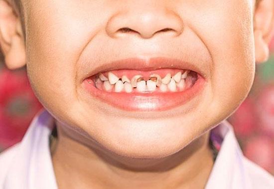 نکاتی که باید درباره پوسیدگی دندان بدانید