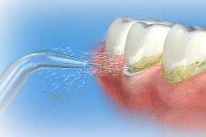 واترپیک یا نخ دندان،کدامیک را انتخاب کنیم؟