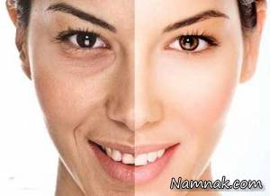 آیا قند باعث پیری پوست می شود؟
