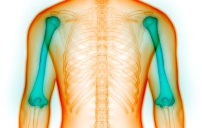 علائم مخفی پوکی استخوان کدامند؟