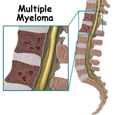 همه چیز درباره سرطان مولتیپل میلوما