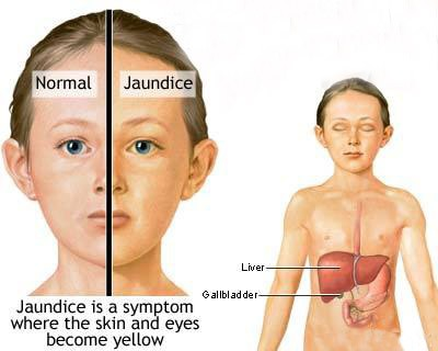 علل ، علائم و درمان سندرم ژیلبرت