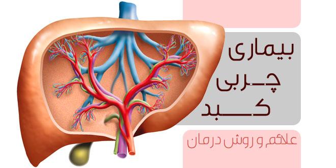 Znalezione obrazy dla zapytania علایم بیماری چربی کبد و راههای درمان