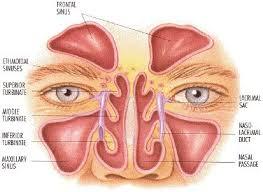 اهمیت درمان سینوزیت در مبتلایان به سردردهای میگرنی و فشارخون