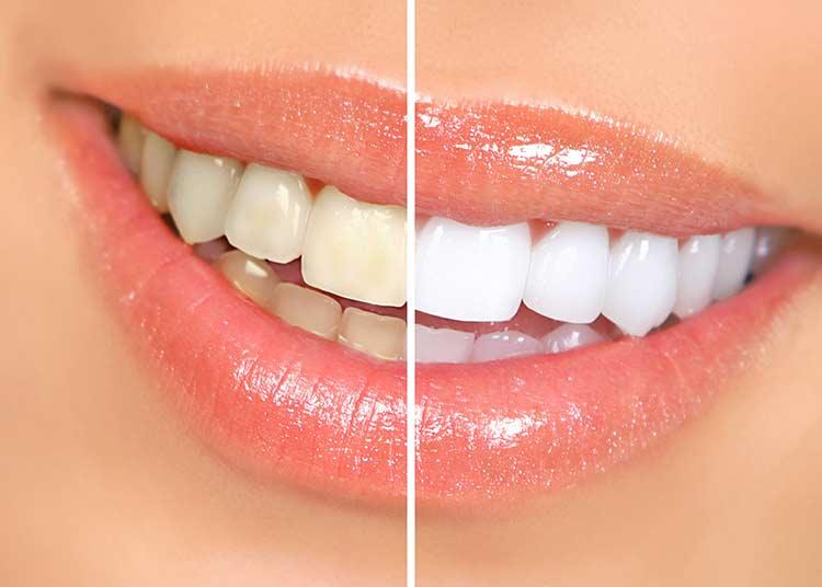 با این روش طبیعی دندان های خود را سفید کنید
