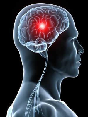 دو فاکتور سکته مغزی در بیماران قلبی