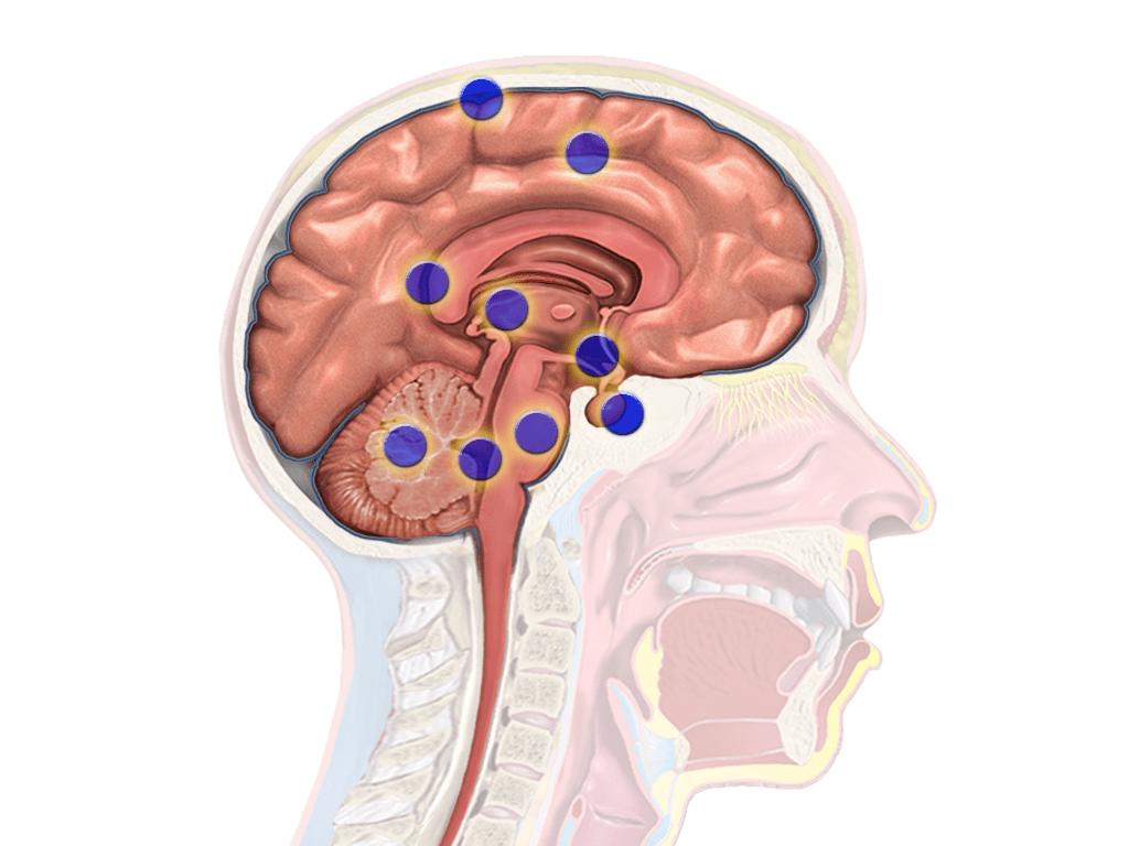 روش جدید برای برداشتن راحتتر تومور خوش خیم