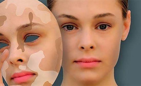 بیماری پیسی و ارتباط آن با ژنتیک