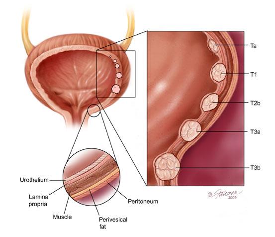 شیوع بالای سرطان مثانه در کشور