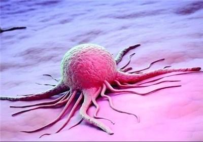 5 سرطان شایع مردان!