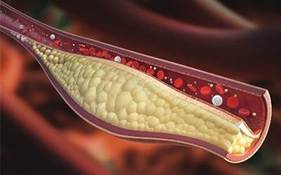 کلسترول بالا موجب از بین رفتن استخوان ها می شود