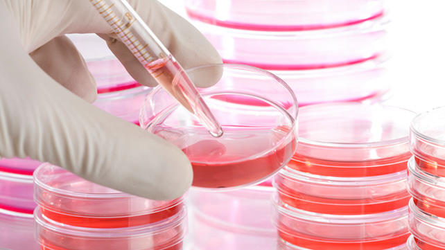 اولین پیوند سلول های بنیادی خونساز با موفقیت انجام شد