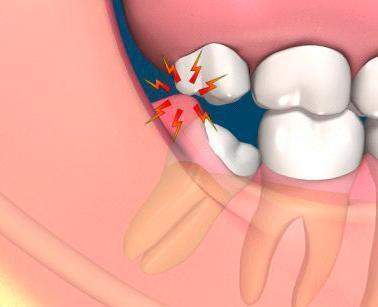 چند نکته درباره دندان عقل