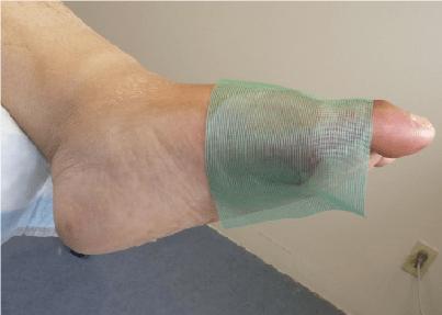 ترمیم زخم با پوست مصنوعی در یک هفته