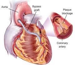 پیشگیری از بیماری عروق کرونر قلب با شناخت عوامل خطر