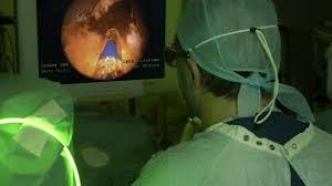 درمان پروستات با لیزر عوارض کمتری دارد