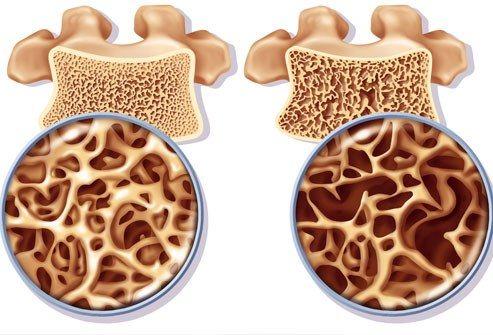 تیر خلاص قرصهای اعصاب بر استخوان بیماران