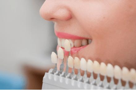 """درمان """"لمینت"""" دندان برای چه کسانی مناسب است"""