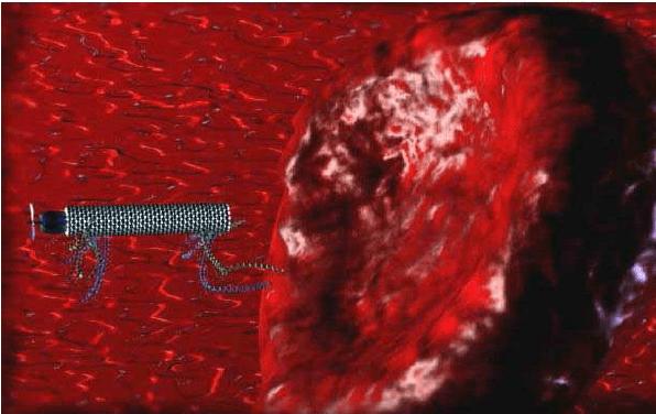 شناسایی و از بین بردن انتخابی سلولهای سرطانی با استفاده از نانو روبات