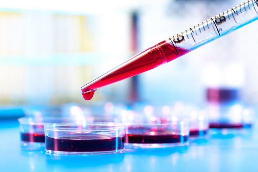 کاهش خطر ابتلا به ورم مفاصل با جلوگیری از عفونت لثه