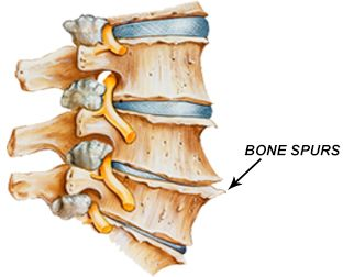 1265The-most-common-spinal-disc-disease