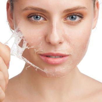 رفع خشکی پوست در زمستان