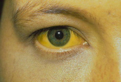 خطرناکترین نوع هپاتیت کدام است؟