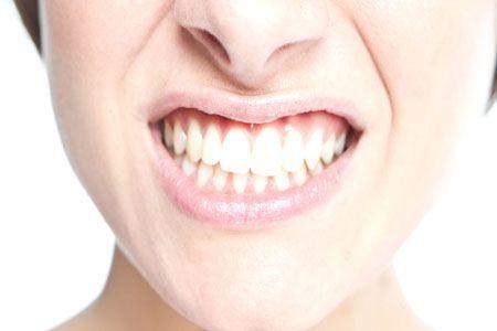 تمام نکات درمانی درباره دندان قروچه