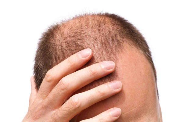 داروی آرتروز به رشد مجدد موها کمک می کند