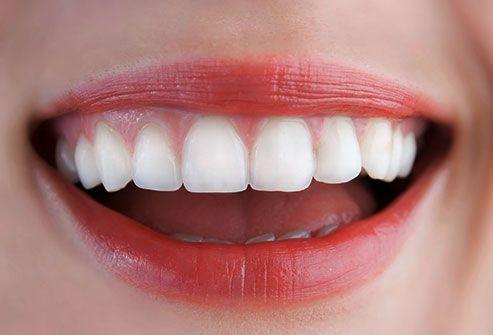 بلایی که پودرهای سفیدکننده بر دندان شما می آورد