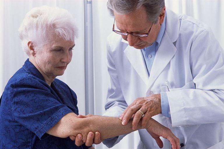 پای مرغ درمانی برای پوکی استخوان