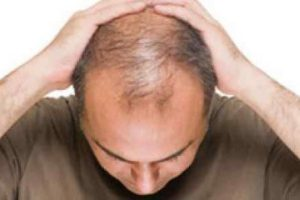 داروهای ضد ریزش مو؛افزایش ناتوانی جنسی