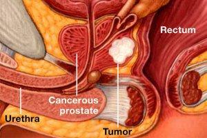 سلامت پروستات با نخوردن5 گروه غذایی