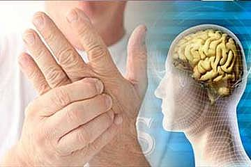 تومور مغزی، دومین سرطان شایع کودکان
