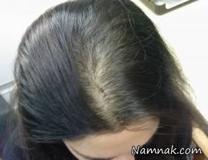 درمان معجزه آسای ریزش مو با این ماسک گیاهی