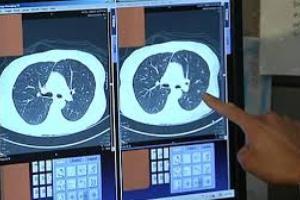 تشخیص سرطان ریه در افراد سیگاری اسکن از ریه الزامی است