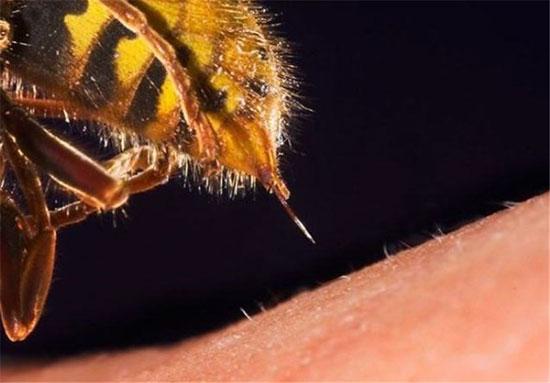 بعد از نیش زدن زنبور چه کنیم