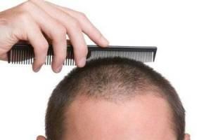قویترین روغن مو که حتی طاسی سر را درمان می کند!