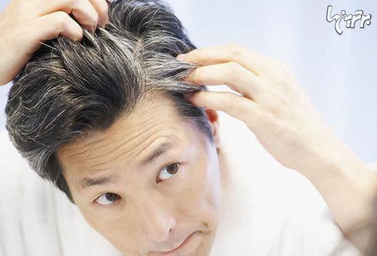 پیشگیری از زود سفید شدن موها