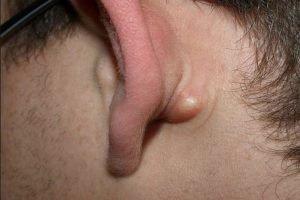 چرا برآمدگى پشت گوش بوجود می آید و درمان آن