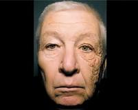 10 خطر ابتلا به سرطان پوست در دوران سالمندی
