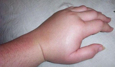 آنژیوادم علائم و درمان بیماری آنژیوادم