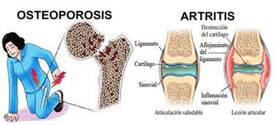 دلایل و درمان پوکی استخوان